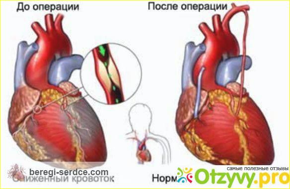 Отзыв о Коронарное шунтирование