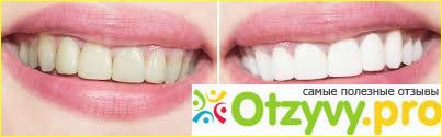 Tooth whitening gel инструкция по применению