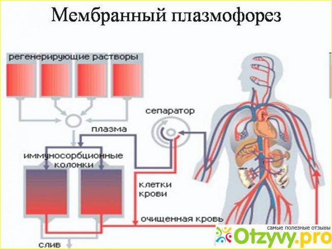 Плазмофорез от простатита хронический простатит женьшень