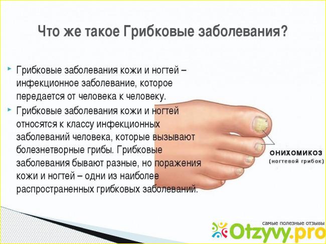 Лучшие из недорогих средств от грибка ногтей на ногах
