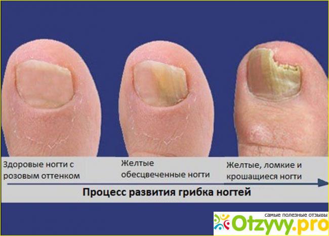 Лучшие средства от грибка ногтей на ногах