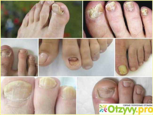 Народные средства от грибка ногтей: советы дерматологов