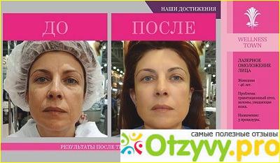 Рекосма лица отзывы фото до и после