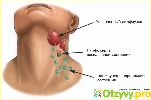 Воспаление лимфоузлов на шее у ребенка: симптомы, лечение