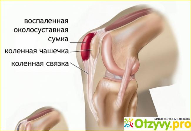 Отзыв о Почему болят колени: причины, что делать. Боль в колене сзади при сгибании: лечение