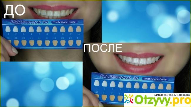 Отбеливающие полоски для зубов