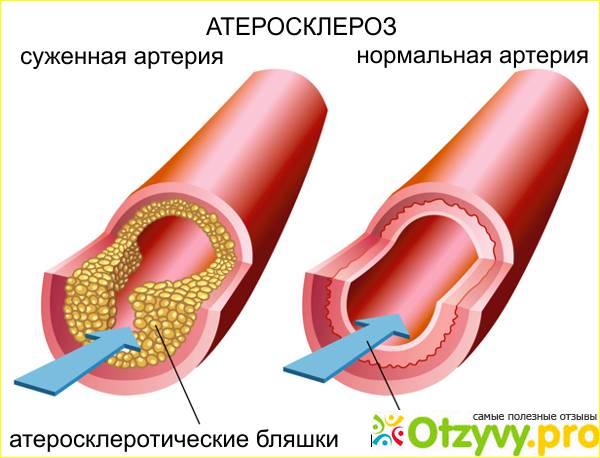 препарат от холестерина эвалар