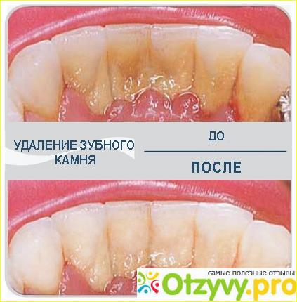 Зубной камень как лечить в домашних условиях