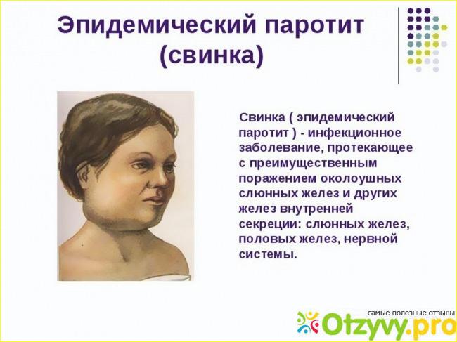 Свинка болезнь у детей мальчиков фото