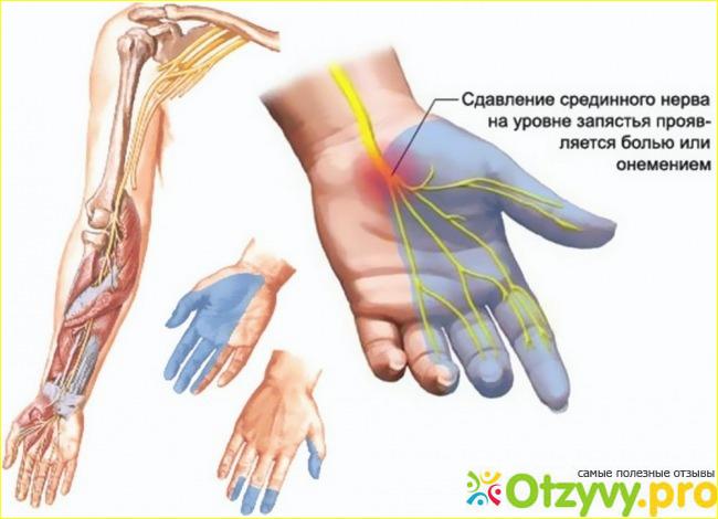Почему немеют пальцы на ногах и на руках с каким заболеванием связано