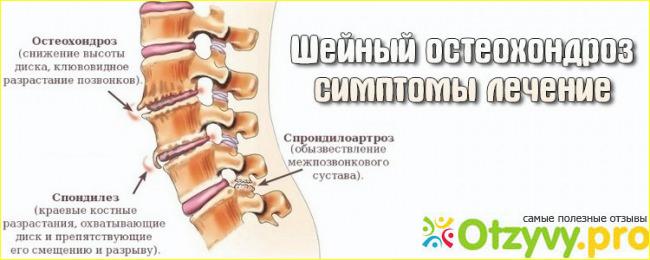 Причины кашля при остеохондрозе шейного и грудного