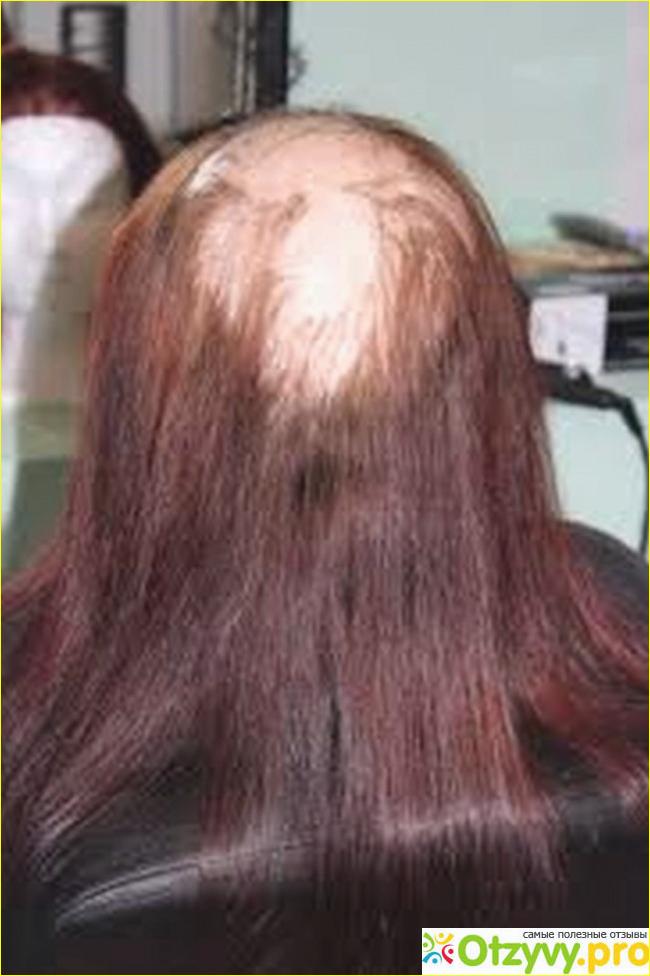 волосы после наращивания фото последствия процедура