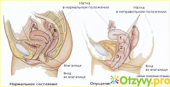 vipadenie-i-opushenie-stenok-vlagalisha-referat