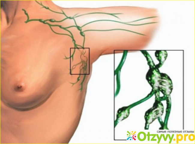 Может ли воспаленный лимфоузел быть признаком беременности