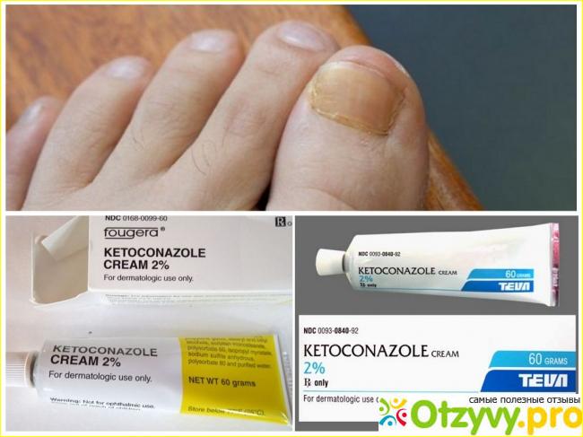 Кетоконазол: подробная инструкция по применению полисмед.