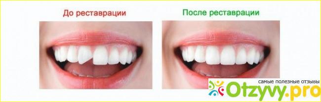 Съемные виниры на зубы отзывы форум