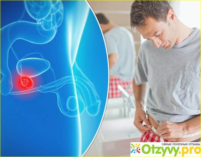 Простатиты у мужчин лечение препараты отзывы