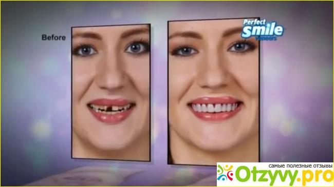 Perfect Smile Veneers отзывы врачей паразитологов цена инструкция