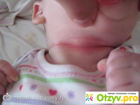 Лечение опрелости на шее у новорожденных лечение в домашних условиях